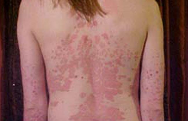 псориаз кожи у человека